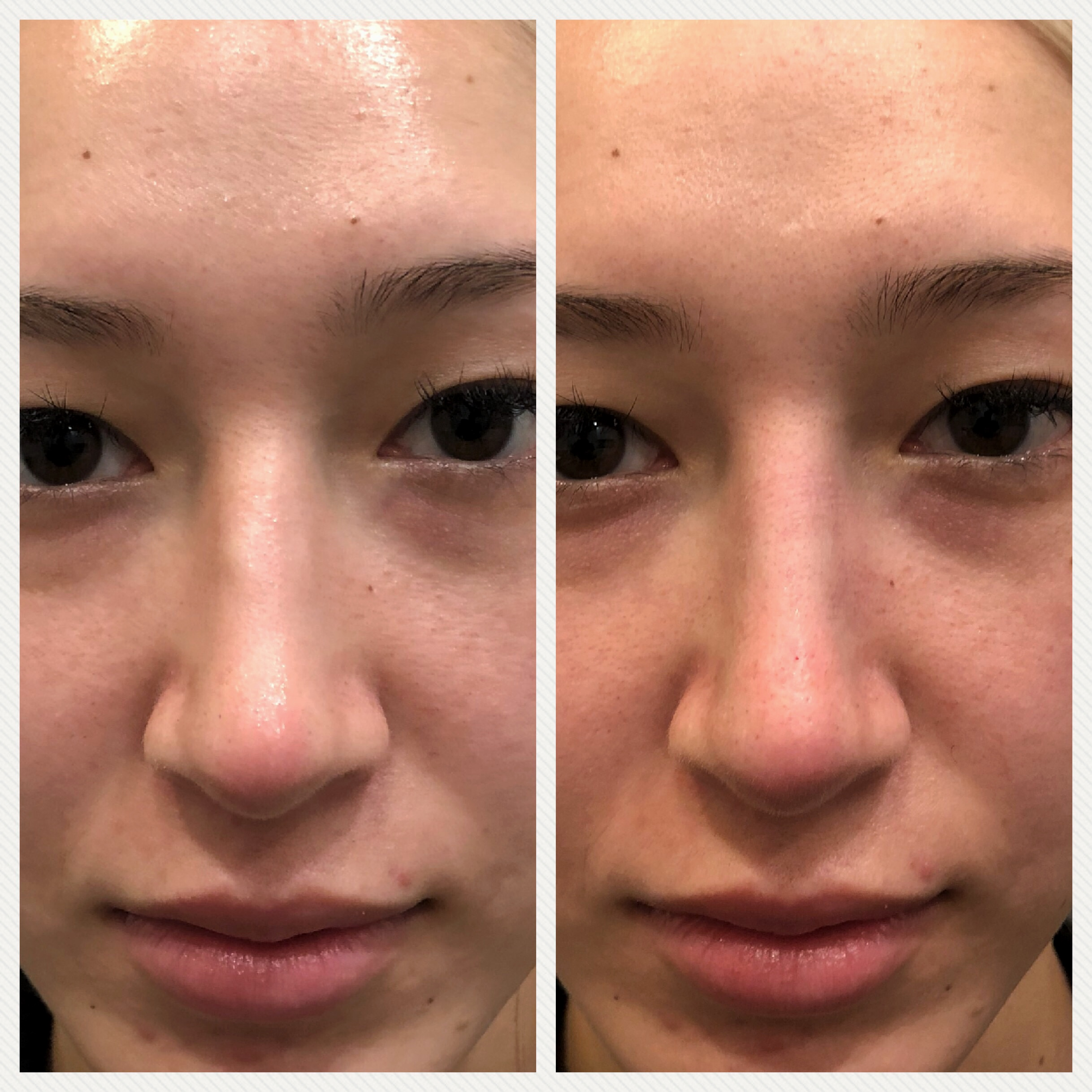 liquid rhinoplasty Beverly HIlls