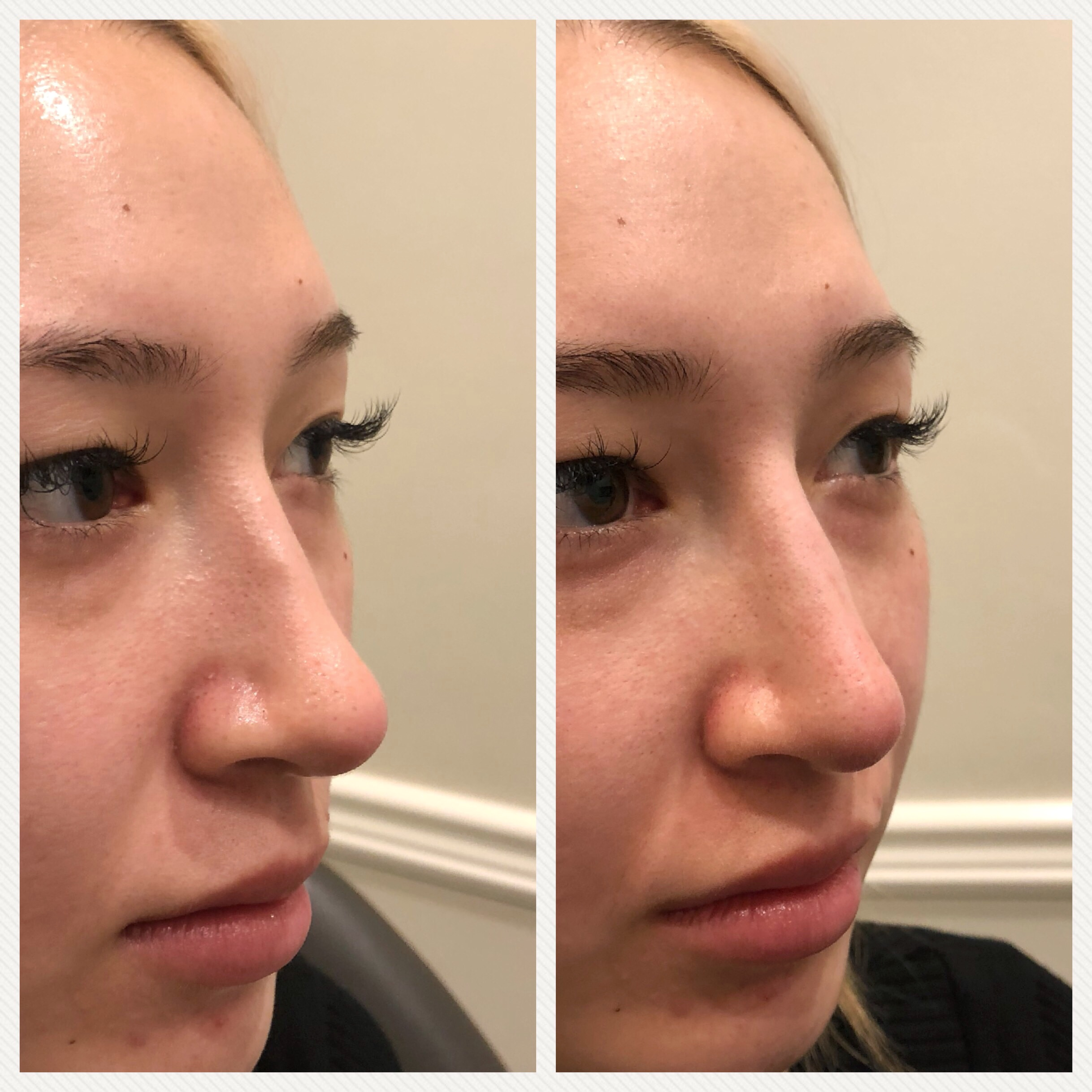 Non-Surgical Rhinoplasty Beverly Hills
